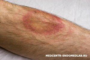 болезнь лайма фото симптомы