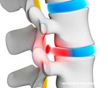 Болит спина уреаплазмоз